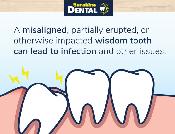 Diagram of an infected, misaligned, impacted wisdom tooth