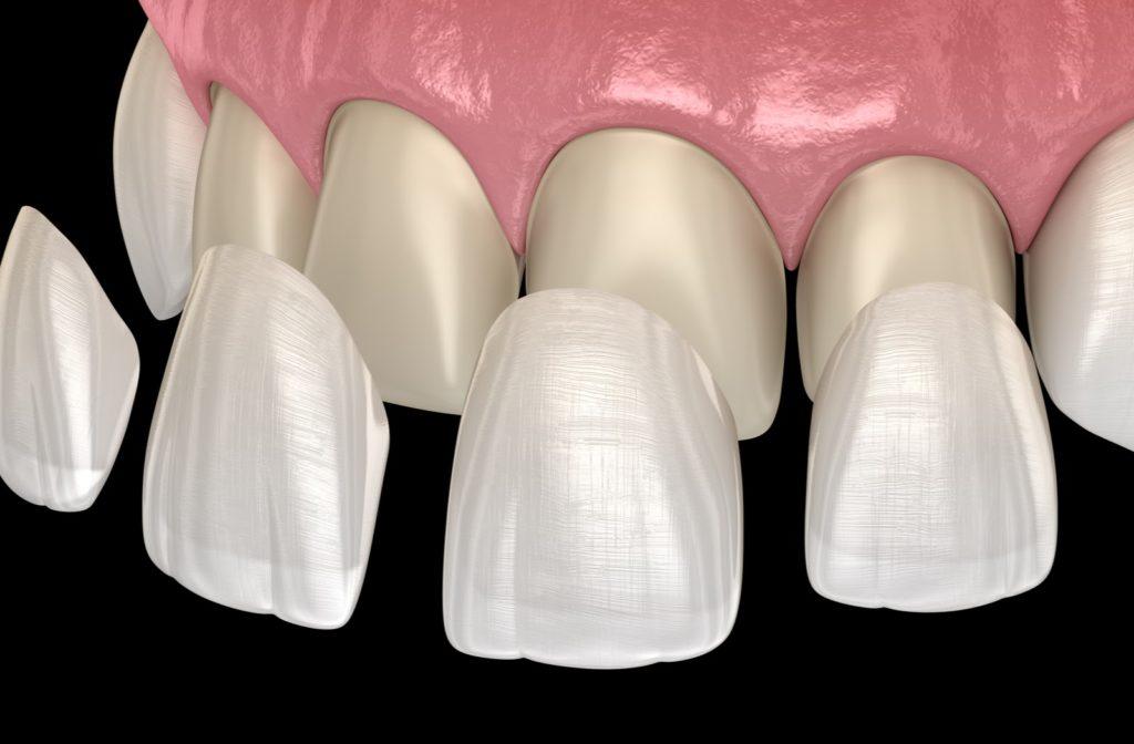 3d rendering of dental veneers being placed on top of teeth