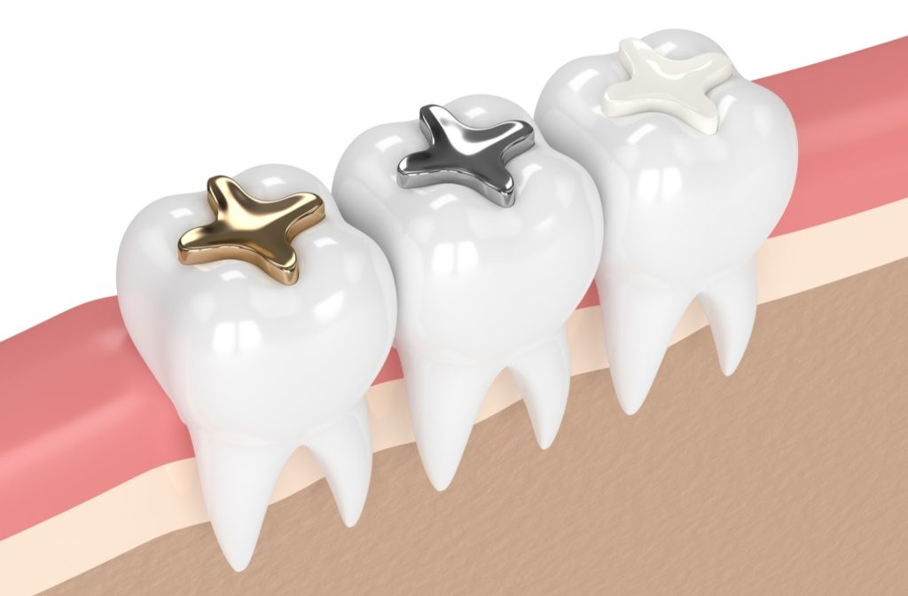 3d rendering of 3 different types of dental fillings