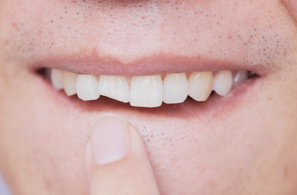 Person pointing at their chipped front tooth that is causing a toothache