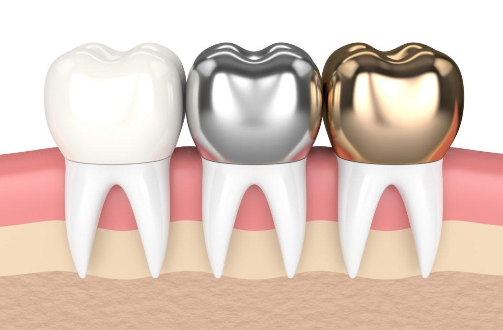 3D illustration of different types of dental crowns